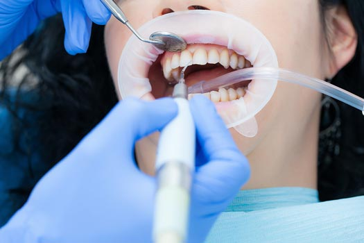 Diş Taşı Temizliği Detertraj